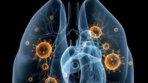 新冠检测方法M02 | 引起肺炎爆发的2019新型冠状病毒的分子诊断